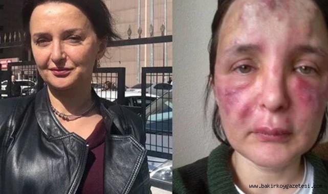Bakırköy'de kadını dolgu yaparak tanınmaz hale getiren sahte doktora 3 yıl 4 ay ceza